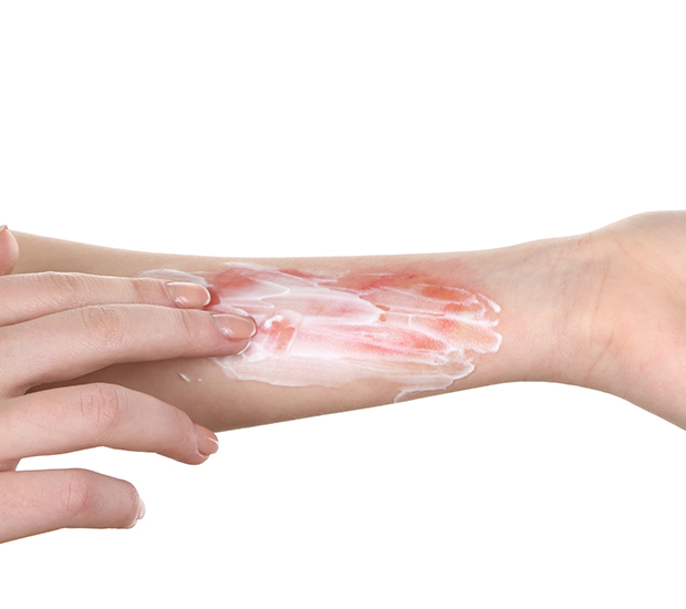 Corona Rashes and Burns Treatment